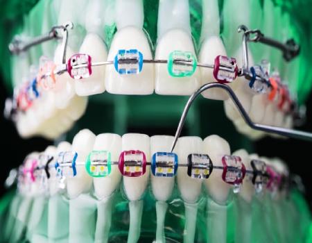 Imagem ilustrativa sobre https://www.clinodente.com.br/cor-da-borrachinha-do-aparelho-dentario/