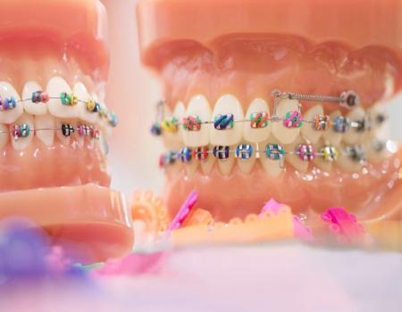 Imagem ilustrativa sobre https://www.clinodente.com.br/quanto-custa-o-aparelho-ortodontico/