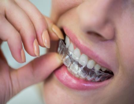 Imagem ilustrativa sobre https://www.clinodente.com.br/alinhadores-dentarios-transparentes/