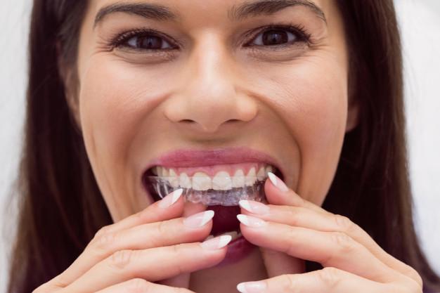 alinhadores-dentarios-transparentes