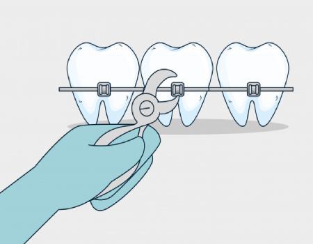 Imagem ilustrativa sobre https://www.clinodente.com.br/quanto-tempo-dura-o-tratamento-ortodontico/